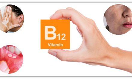 यदि शरीर में विटामिन बी 12 कम हो जाता है, तो ऐसे लक्षण दिखाई देते हैं, और गंभीर बीमारियां हो सकती हैं, शाकाहारी जरूर पढे