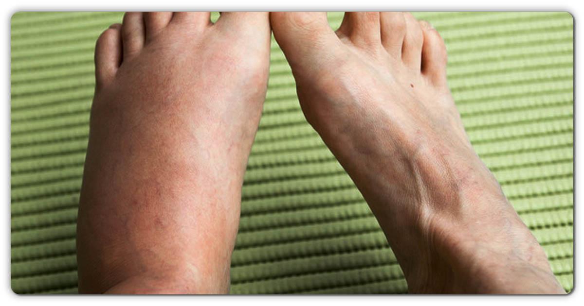 पैरों में बार-बार सूजन और दर्द की समस्याओं से कायमी छुटकारा पाने के लिए अपनाए ये इस घरलू उपचार, १००% लाभदायी